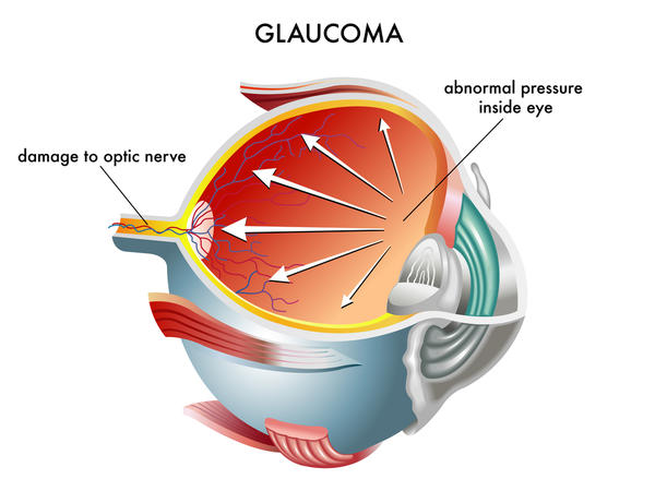Glaucoma Treatment In Delhi Sharp Sight Centre Best