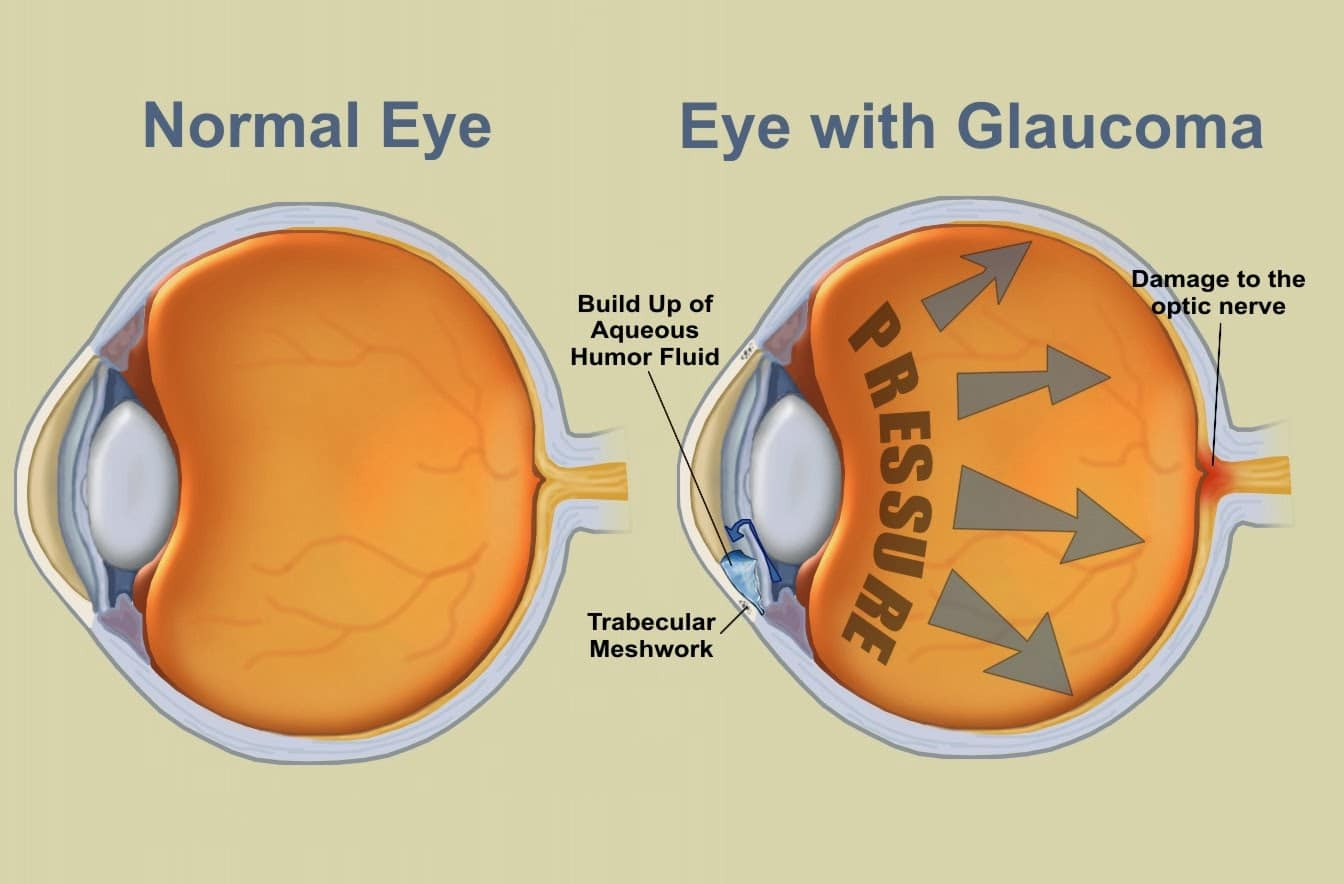 Glaucoma Prevention