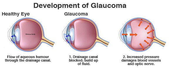 Advanced And Best Glaucoma Treatment Now Available In Delhi