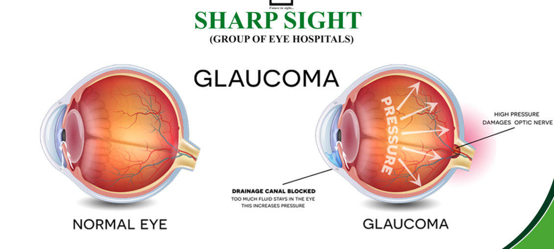 What Is Glaucoma Archives Sharp Sight Blog Complete