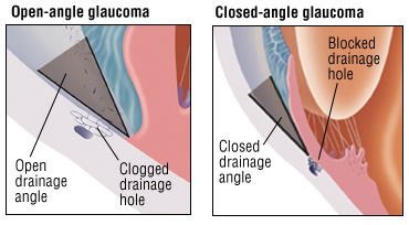 open-angle and angle-closure