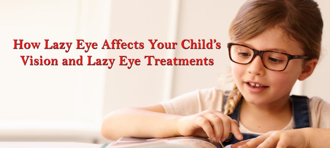 lazy-eye-treatment