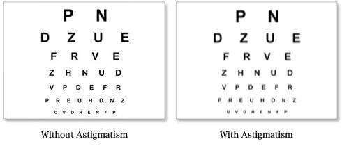 Common Symptoms of Astigmatism