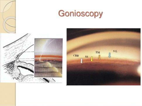 glaucoma Gonioscopy