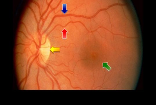 glaucoma Ophthalmoscopy