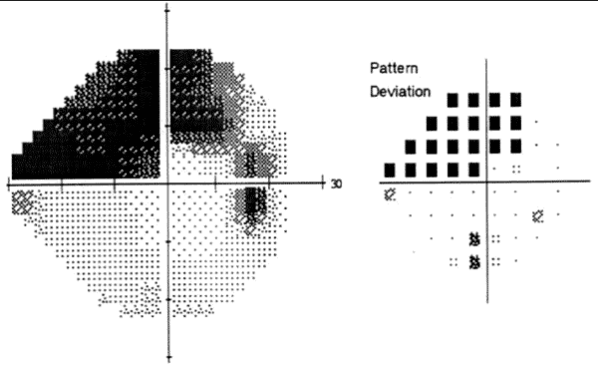 glaucoma Perimetry