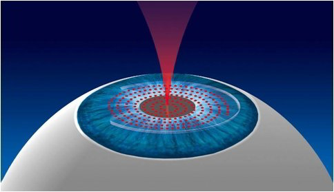 Femtosecond LASIK Laser Surgery