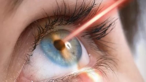 Touchless LASIK Laser Surgery