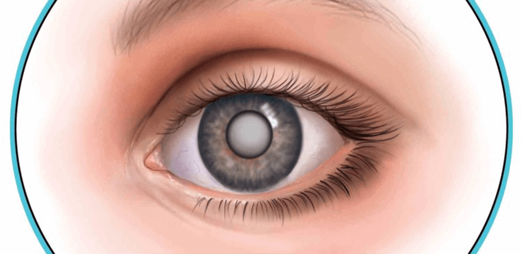 Sharp Sight Offers Affordable Cataract Operation Cost in Delhi with Lenses For Full Range of Vision