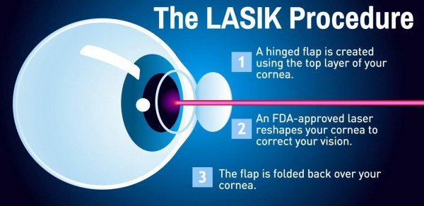 Lasik Surgery Procedure